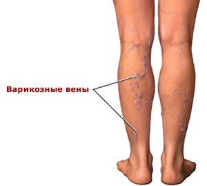 Мухомор против крем для ног против варикоза отеков усталости